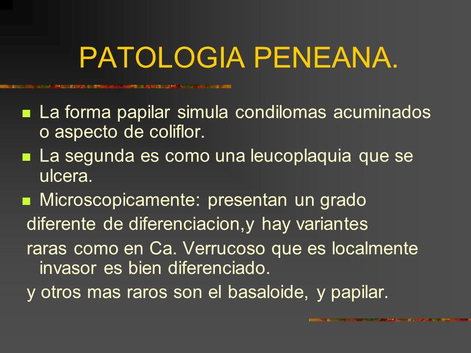 PATOLOGIA PENEANA. La forma papilar simula condilomas acuminados o aspecto de coliflor. La segunda es como una leucoplaquia que se ulcera.