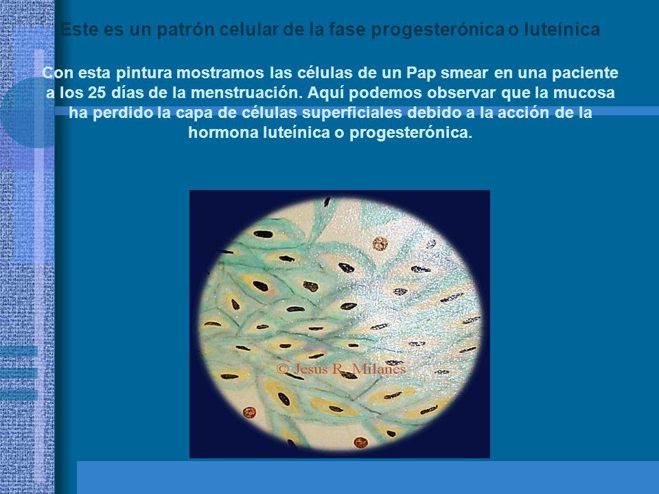 Este es un patrón celular de la fase progesterónica o luteínica