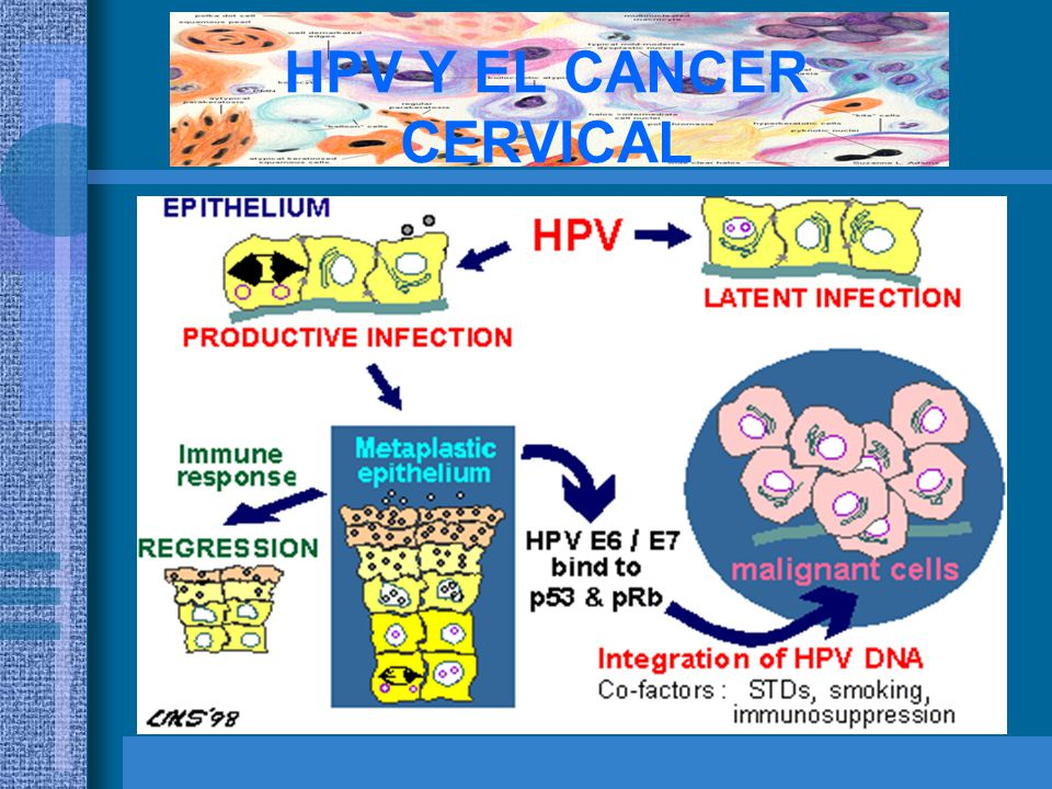 HPV Y EL CANCER CERVICAL