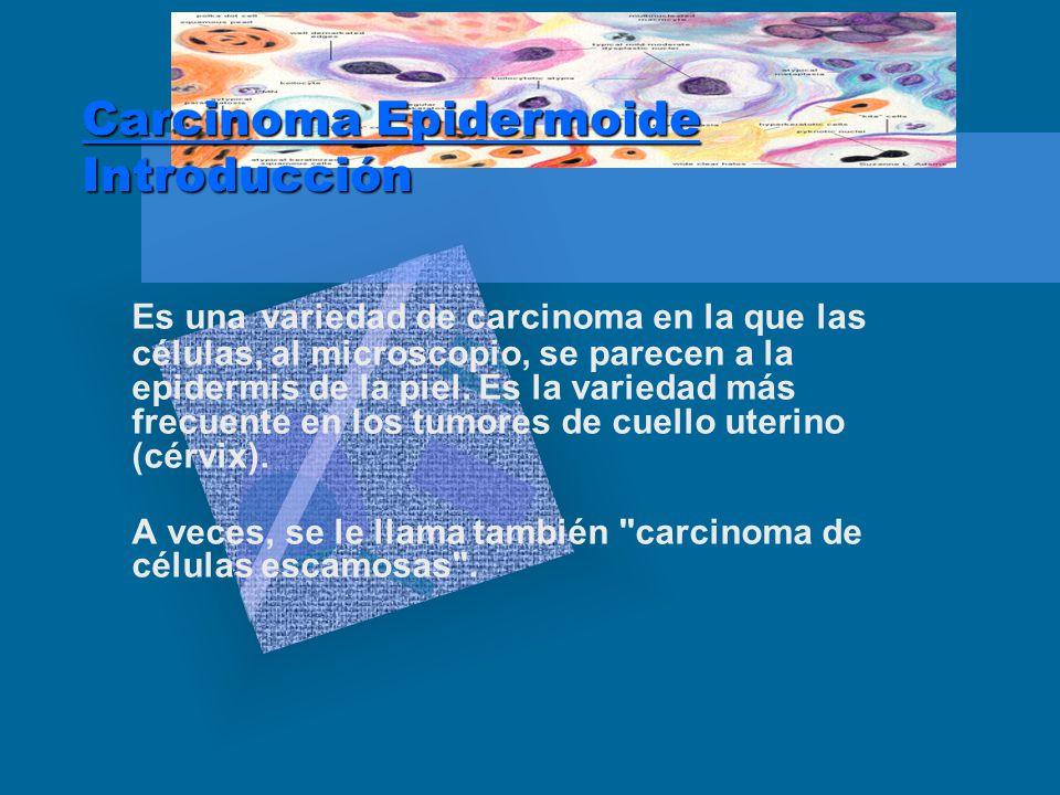 Carcinoma Epidermoide Introducción