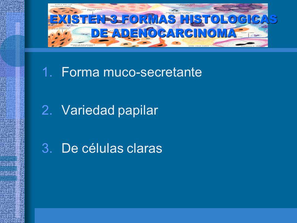 EXISTEN 3 FORMAS HISTOLOGICAS DE ADENOCARCINOMA
