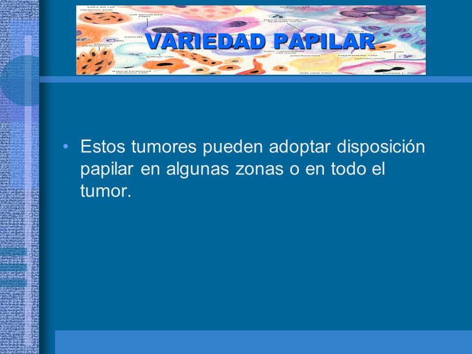 VARIEDAD PAPILAR Estos tumores pueden adoptar disposición papilar en algunas zonas o en todo el tumor.