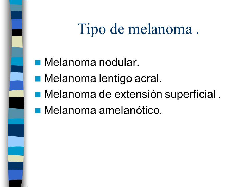 Tipo de melanoma . Melanoma nodular. Melanoma lentigo acral.
