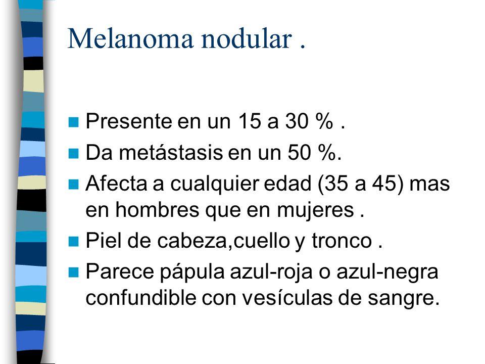 Melanoma nodular . Presente en un 15 a 30 % .