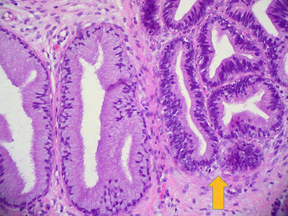 Adenocarcinoma de Cervix