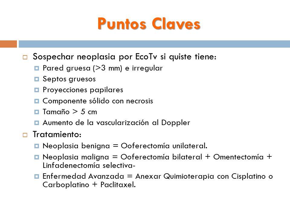 Puntos Claves Sospechar neoplasia por EcoTv si quiste tiene: