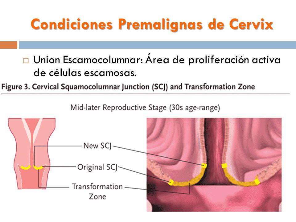 Condiciones Premalignas de Cervix