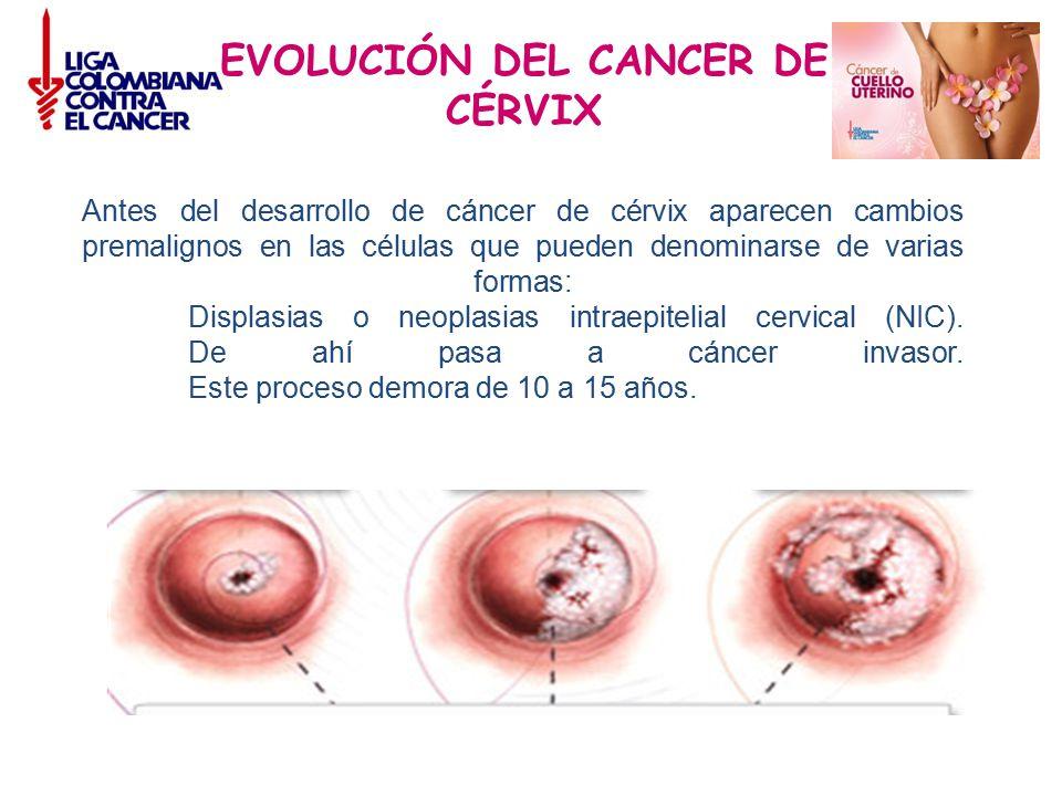 EVOLUCIÓN DEL CANCER DE CÉRVIX