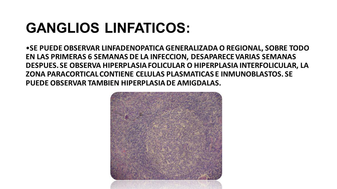 GANGLIOS LINFATICOS: