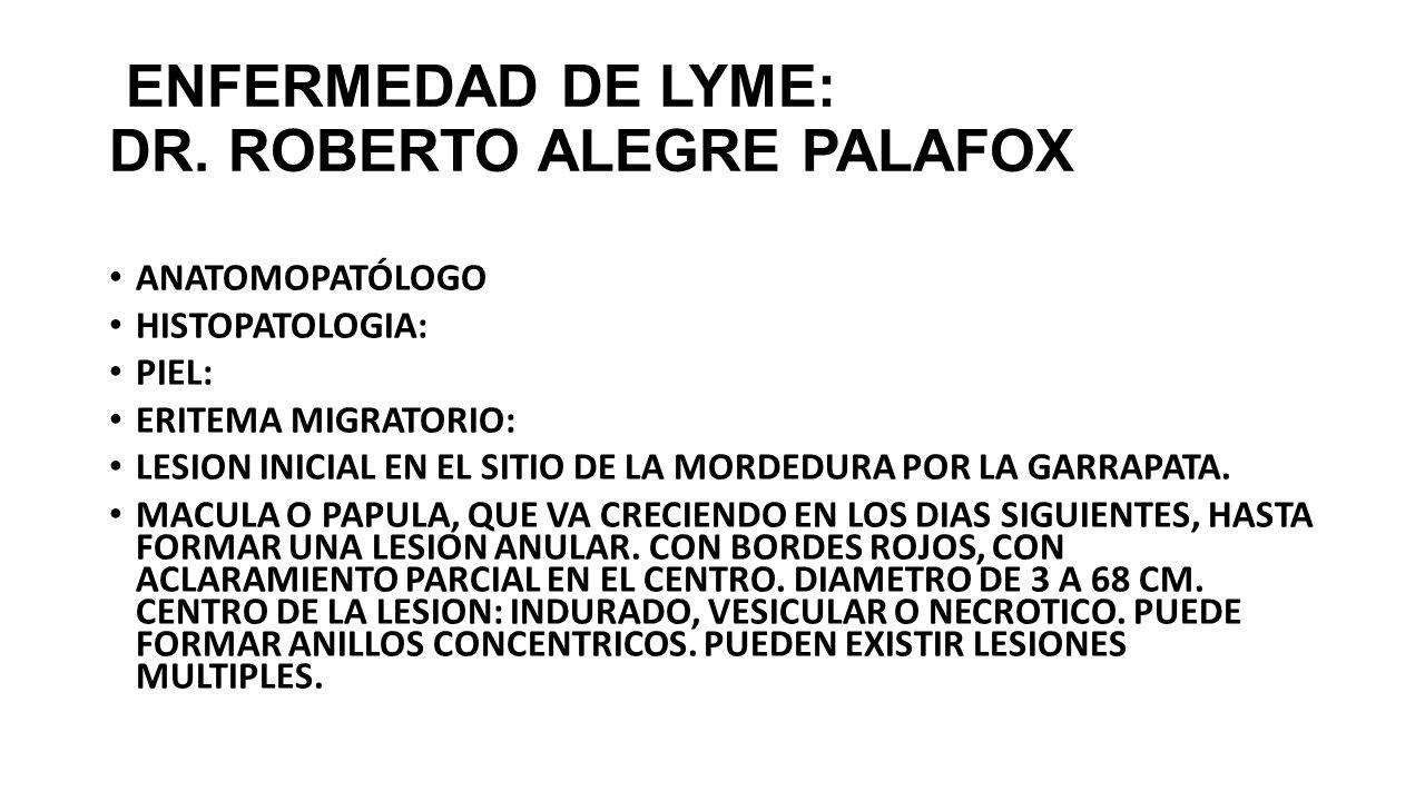 ENFERMEDAD DE LYME: DR. ROBERTO ALEGRE PALAFOX