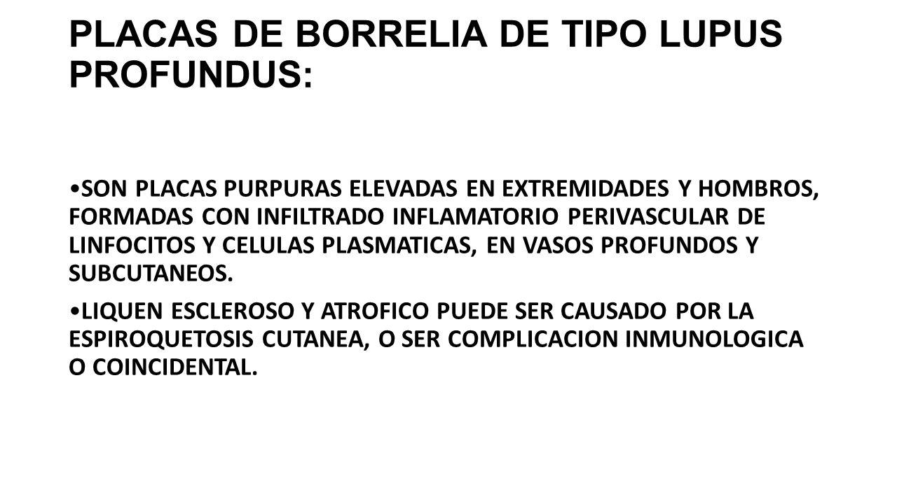 PLACAS DE BORRELIA DE TIPO LUPUS PROFUNDUS: