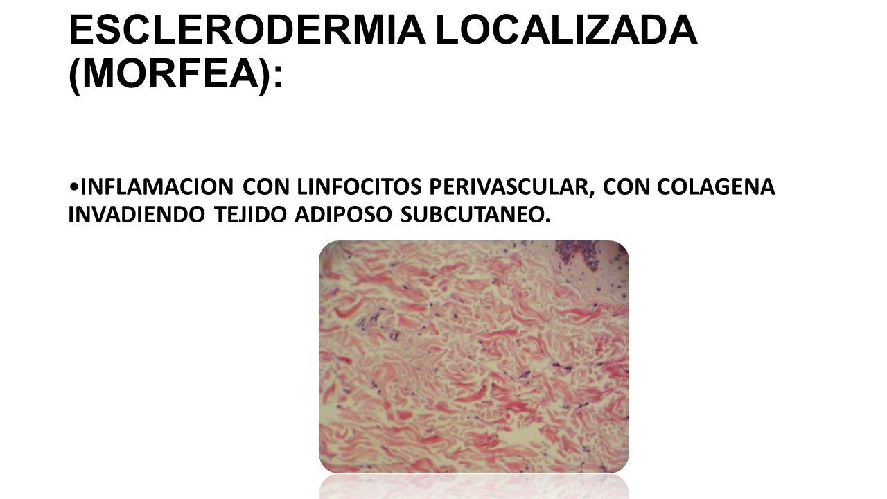 ESCLERODERMIA LOCALIZADA (MORFEA):