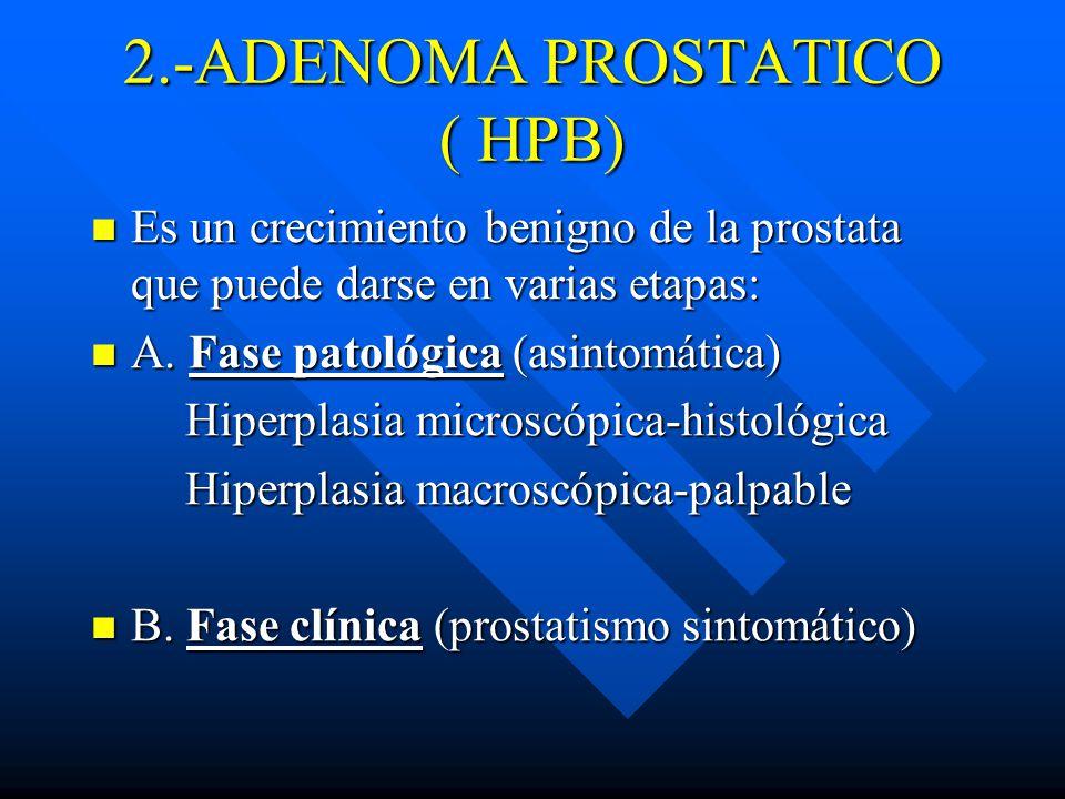 2.-ADENOMA PROSTATICO ( HPB)