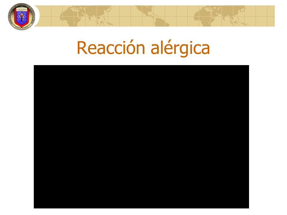 Reacción alérgica