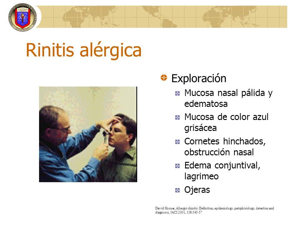 Rinitis alérgica Exploración Mucosa nasal pálida y edematosa
