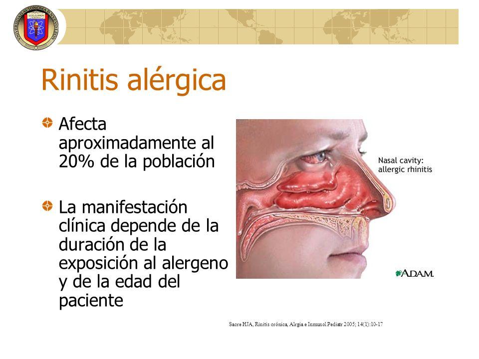 Rinitis alérgica Afecta aproximadamente al 20% de la población