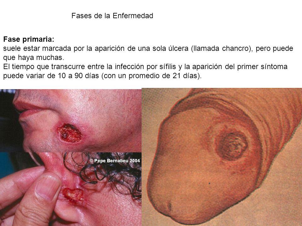 Fases de la Enfermedad Fase primaria: suele estar marcada por la aparición de una sola úlcera (llamada chancro), pero puede que haya muchas.