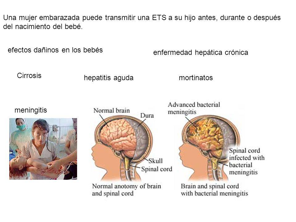 Una mujer embarazada puede transmitir una ETS a su hijo antes, durante o después del nacimiento del bebé.