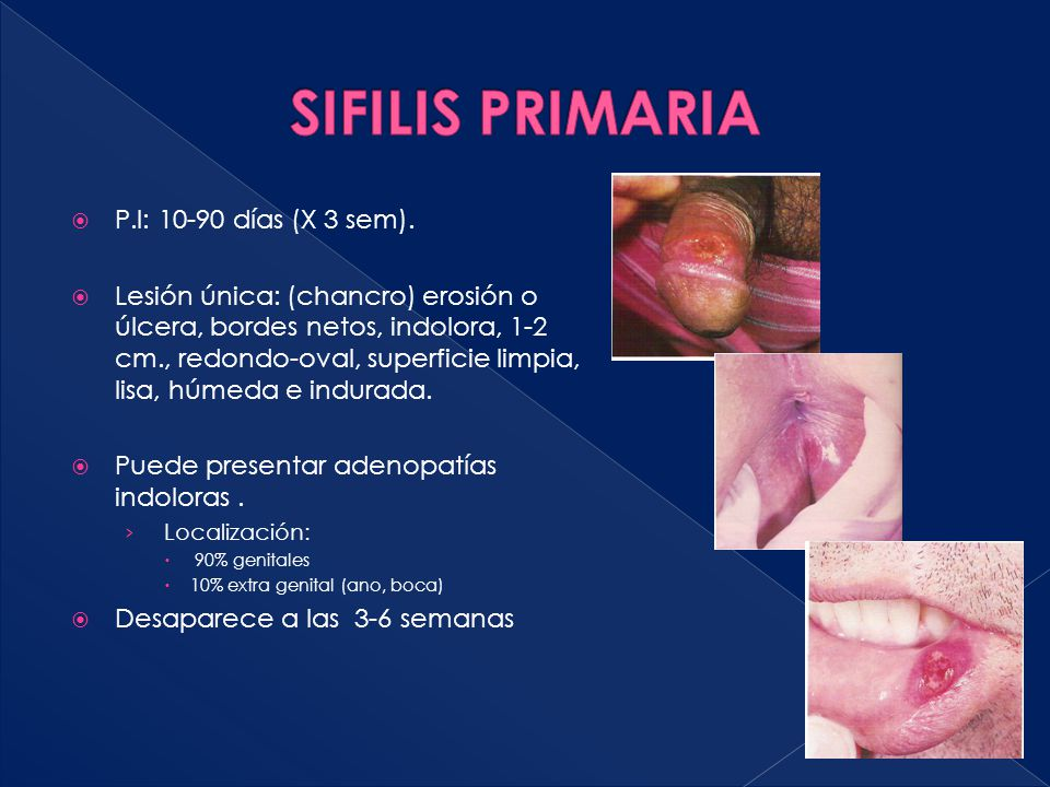 SIFILIS PRIMARIA P.I: 10-90 días (X 3 sem).