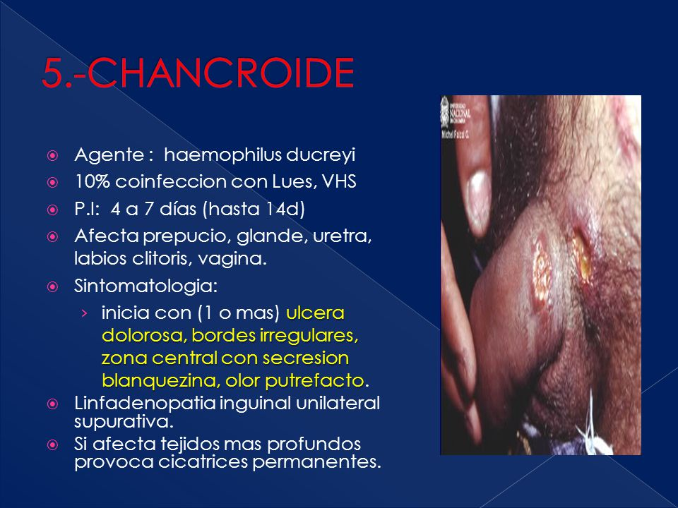 5.-CHANCROIDE Agente : haemophilus ducreyi