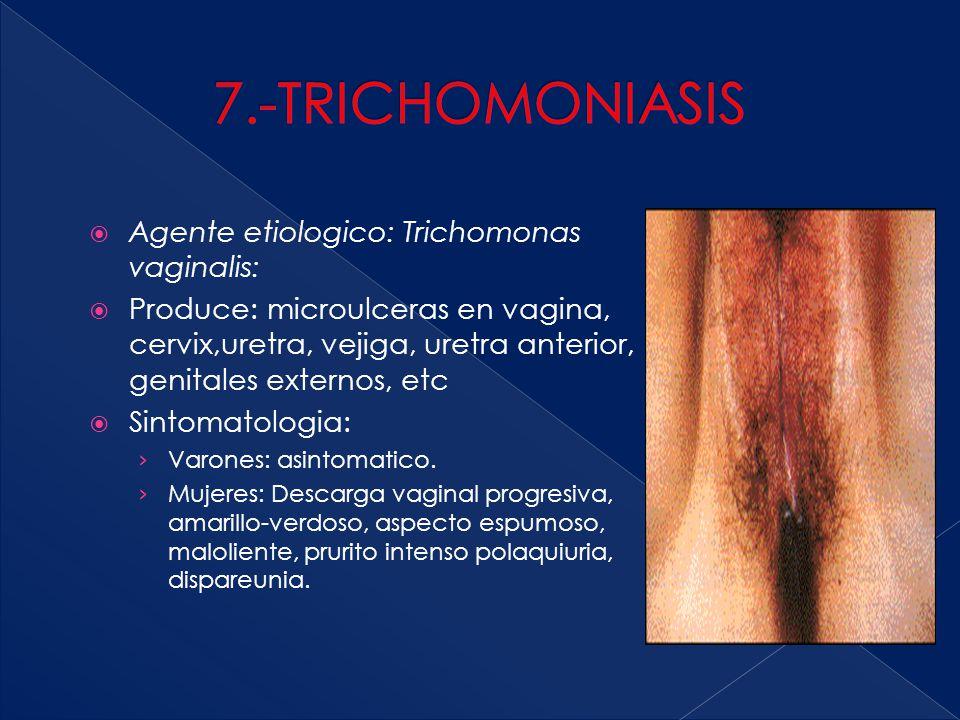 7.-TRICHOMONIASIS Agente etiologico: Trichomonas vaginalis: