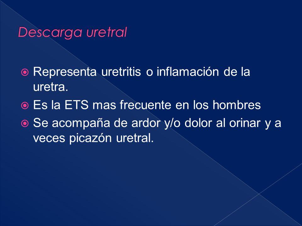 Descarga uretral Representa uretritis o inflamación de la uretra.