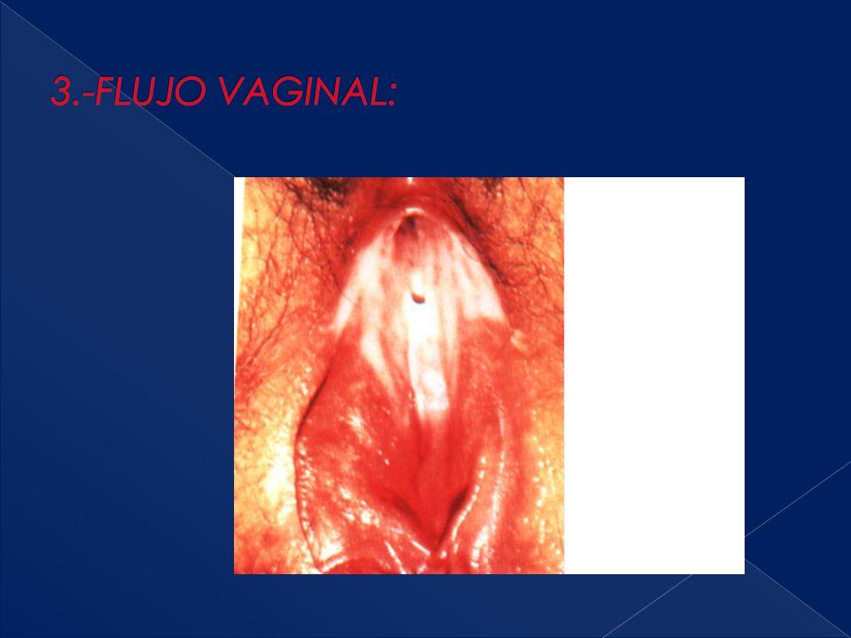 3.-FLUJO VAGINAL: