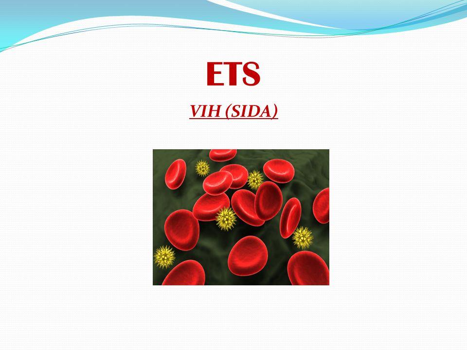 ETS VIH (SIDA)