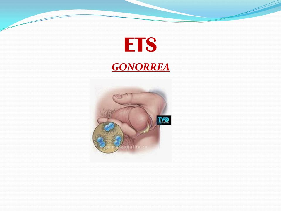 ETS GONORREA