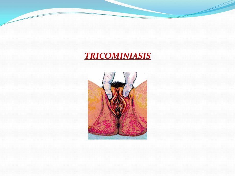 TRICOMINIASIS