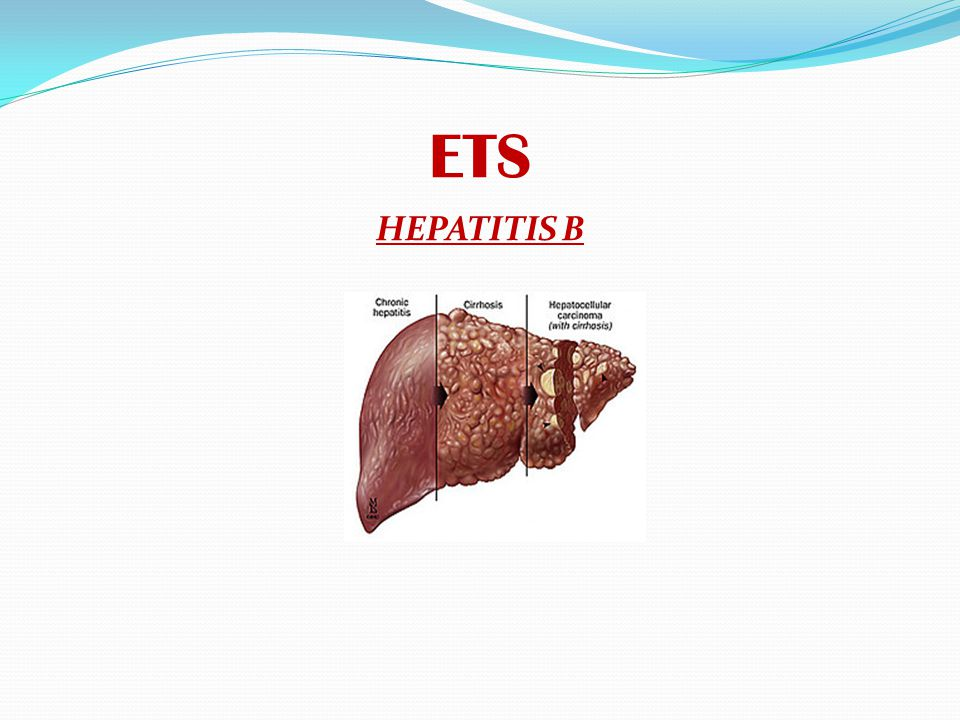 ETS HEPATITIS B