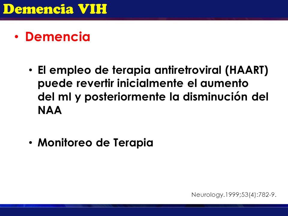 Demencia VIH Demencia.