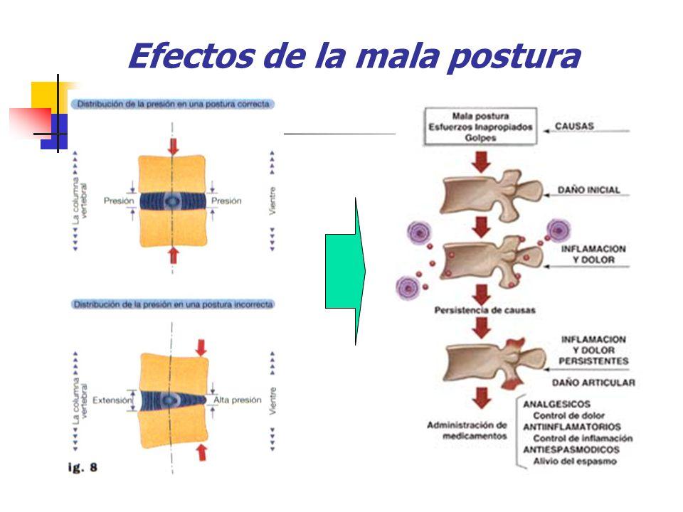 Efectos de la mala postura