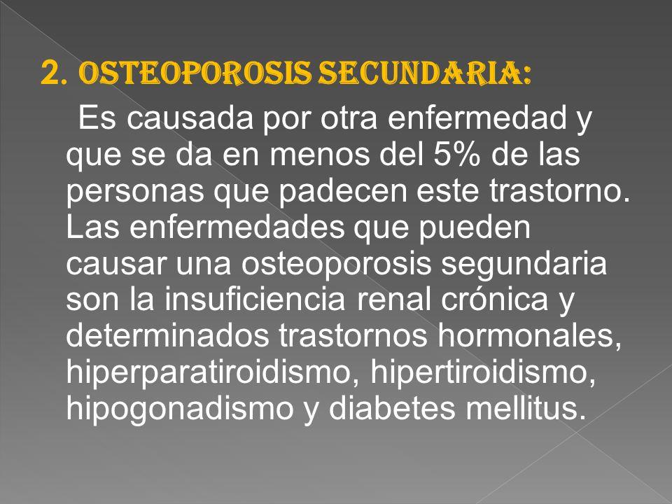 OSTEOPOROSIS. - ppt descargar