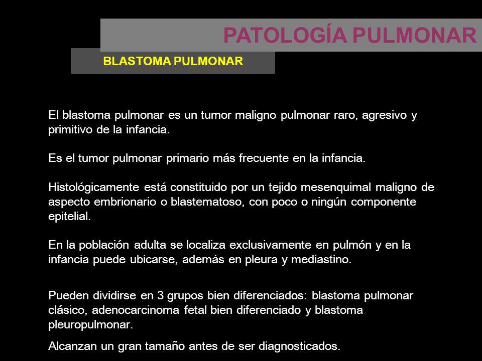 Patología pulmonar neumonía sospecha clínica de neumonía ppt.
