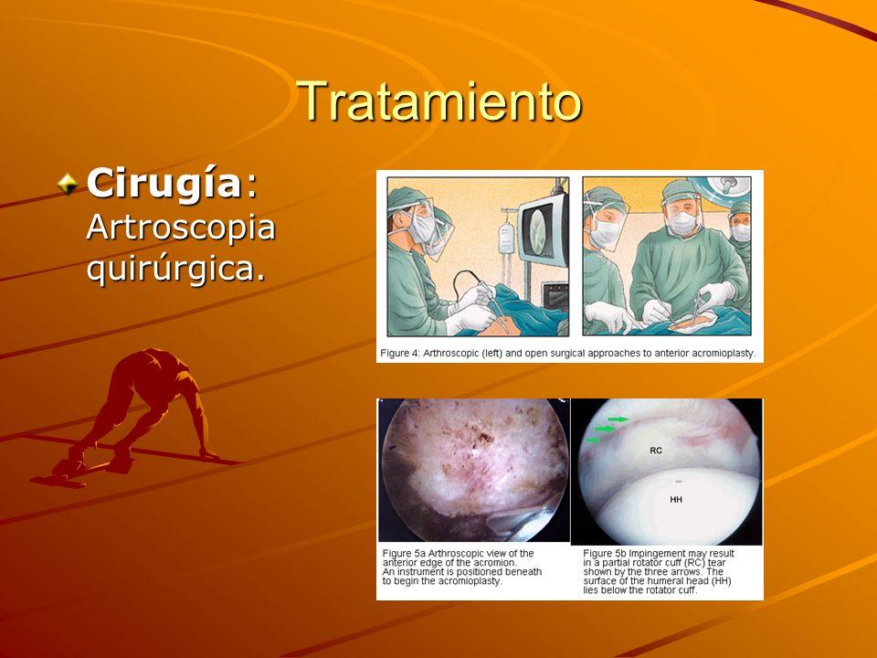 Tratamiento Cirugía: Artroscopia quirúrgica.