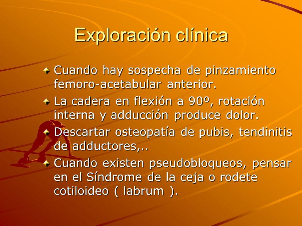 Exploración clínica Cuando hay sospecha de pinzamiento femoro-acetabular anterior.