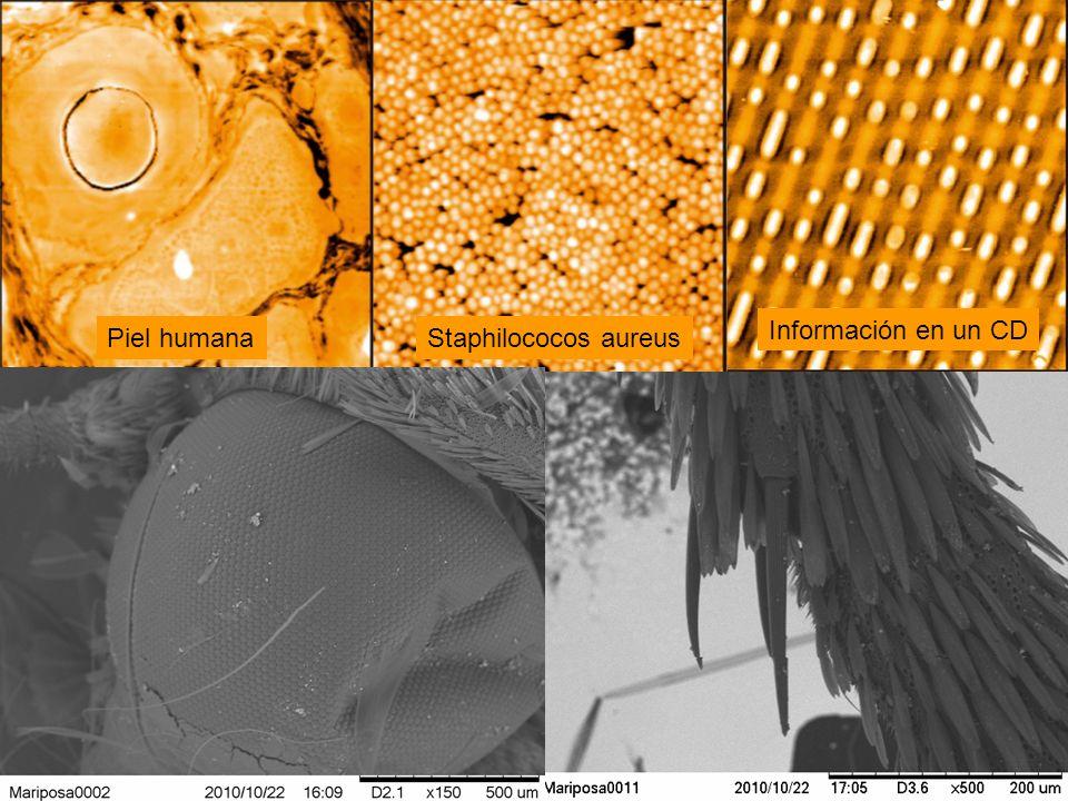 Información en un CD Piel humana Staphilococos aureus
