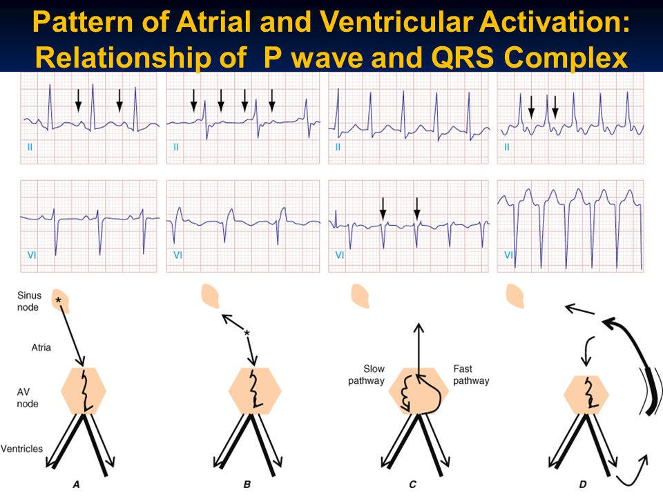Pattern of Atrial and Ventricular Activation: Relationship of P wave and QRS Complex