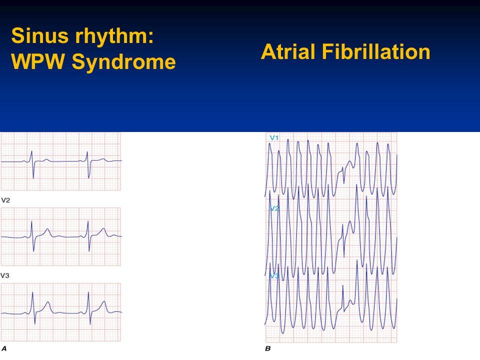 Sinus rhythm: WPW Syndrome Atrial Fibrillation