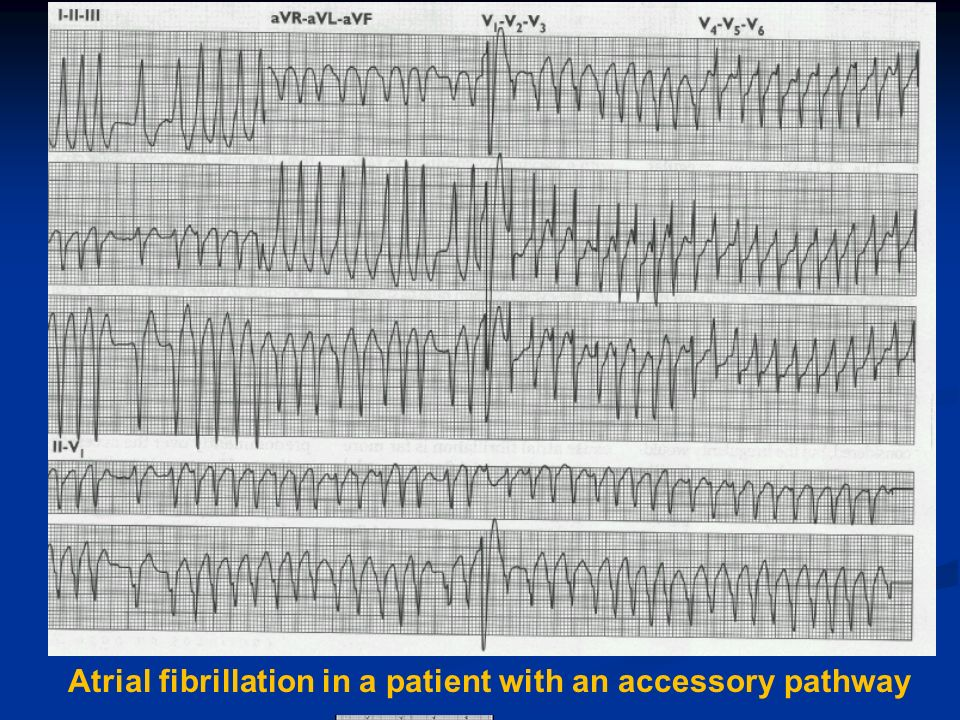 Atrial fibrillation in a patient with an accessory pathway