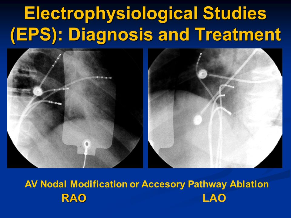 Electrophysiological Studies (EPS): Diagnosis and Treatment
