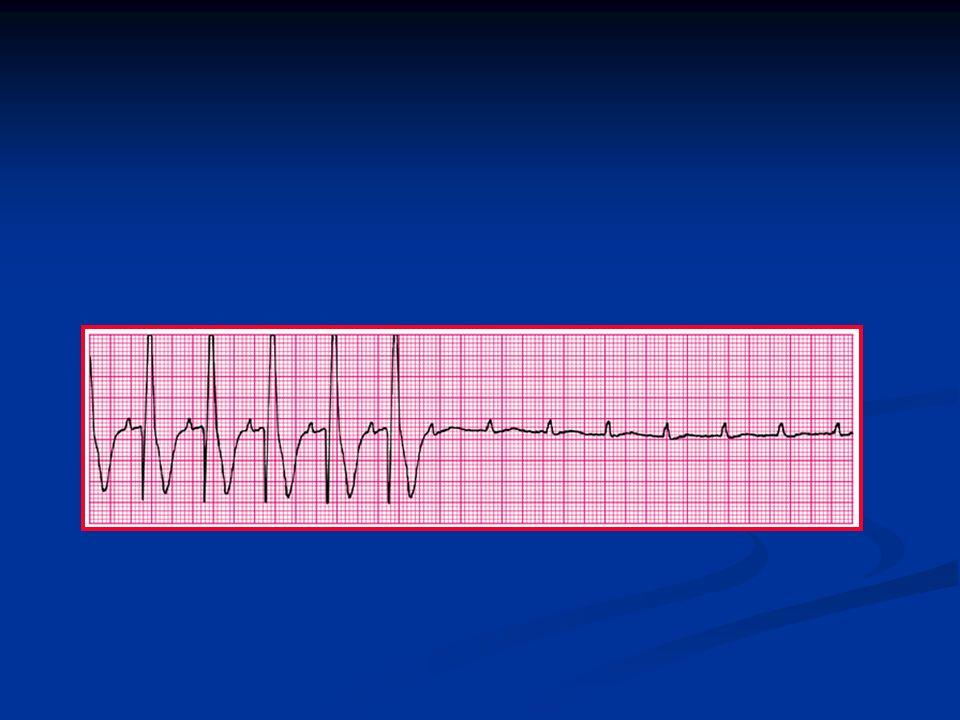 Third-degree AV block with ventricular asystole