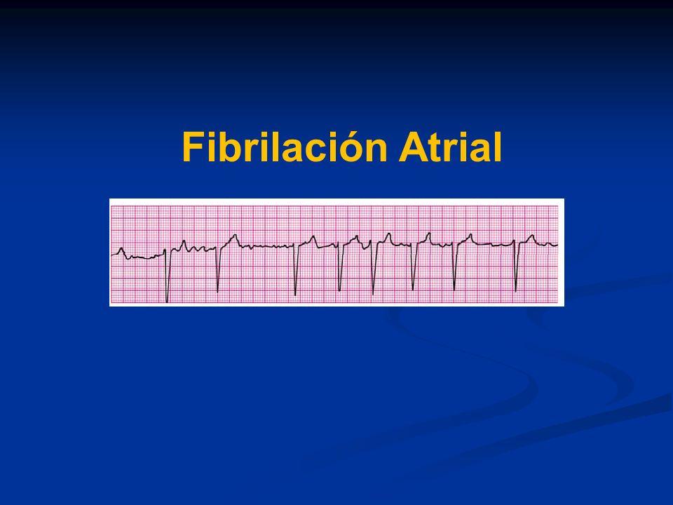 Fibrilación Atrial