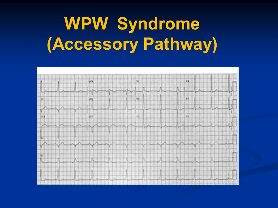 WPW Syndrome (Accessory Pathway)