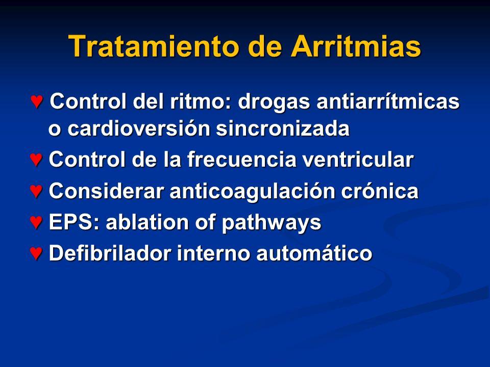 Tratamiento de Arritmias