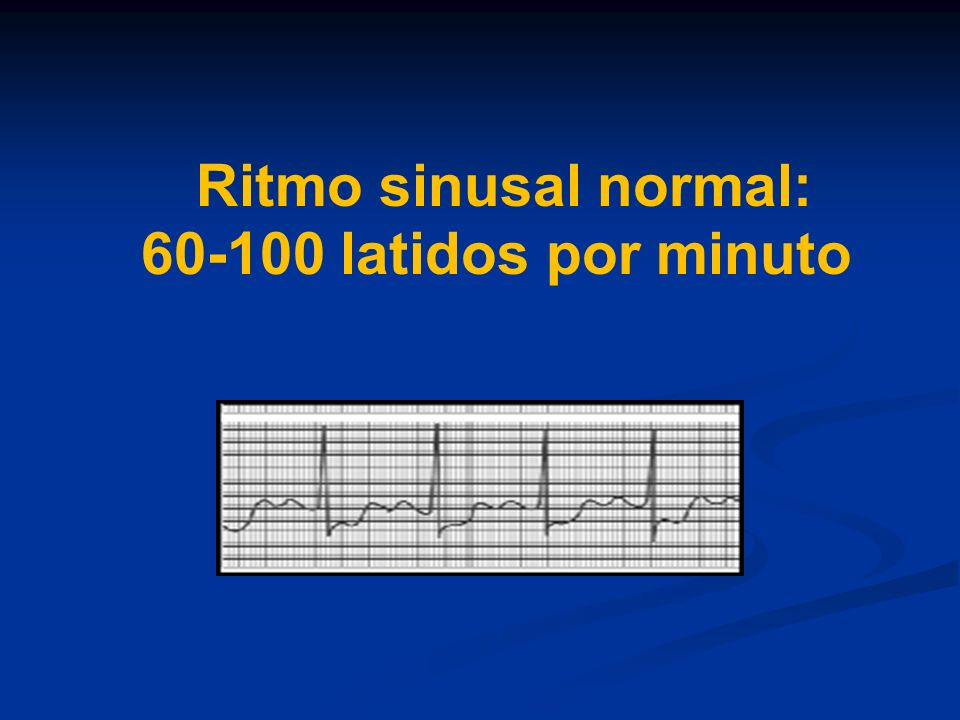 Ritmo sinusal normal: 60-100 latidos por minuto