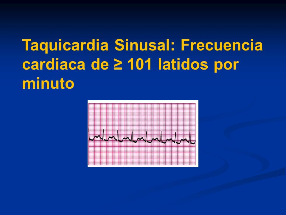 Taquicardia Sinusal: Frecuencia cardiaca de ≥ 101 latidos por minuto