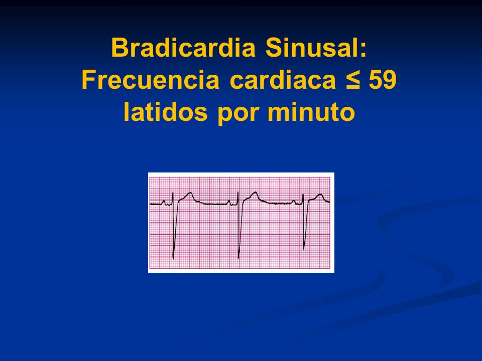 Bradicardia Sinusal: Frecuencia cardiaca ≤ 59 latidos por minuto