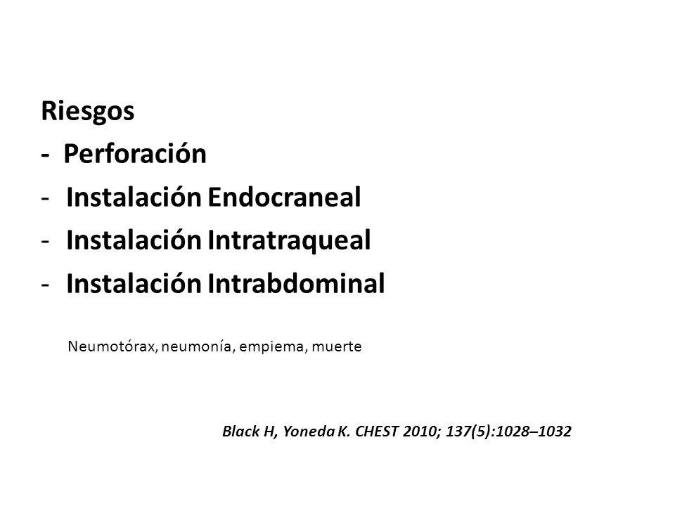 Instalación Endocraneal Instalación Intratraqueal